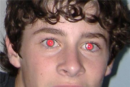 """Nguyên nhân và cách khắc phục hiệu ứng """"mắt đỏ"""""""