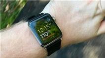 Apple Watch là thiết bị đeo sức khỏe chính xác nhất
